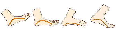 Амортизация стопы при беге