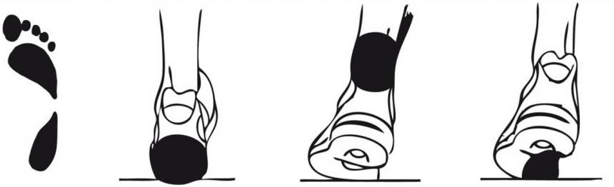 Недостаточная пронация: отпечаток стопы и места, на которые приходится наибольшая нагрузка при беге