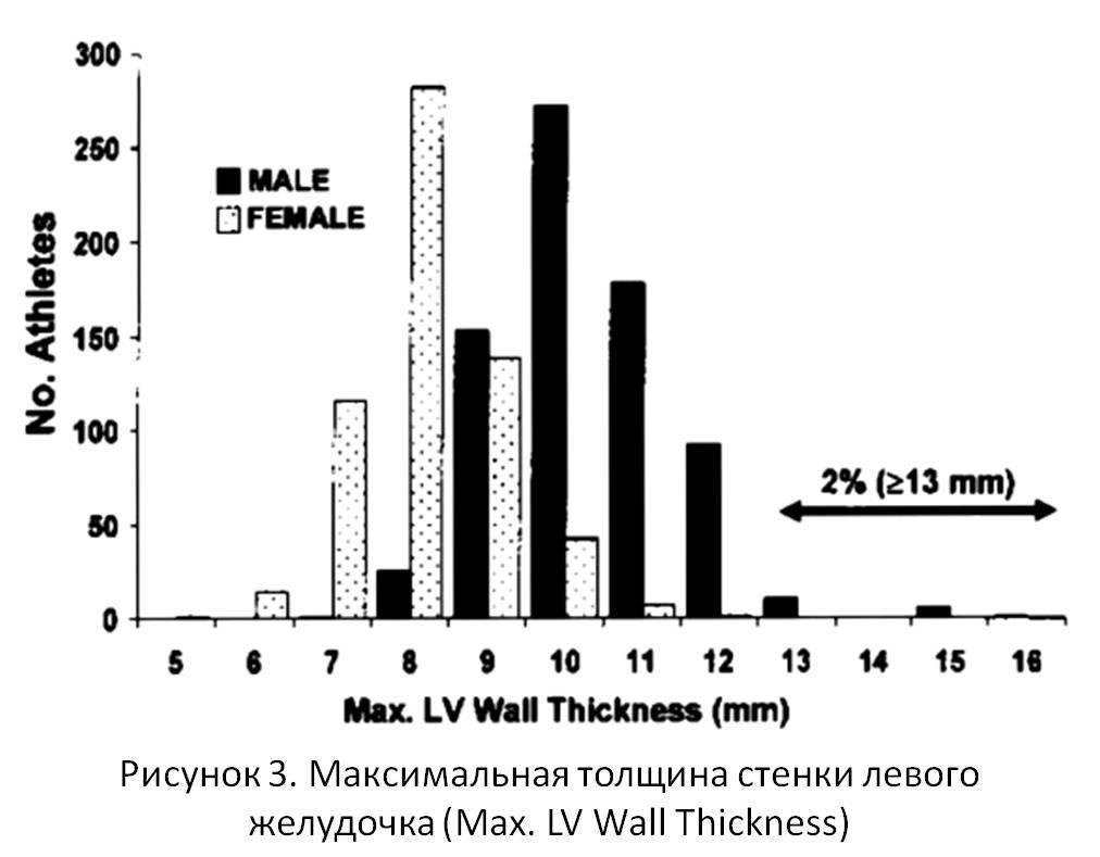 Рисунок 3. Максимальная толщина стенки левого желудочка (Max. LV Wall Thickness)