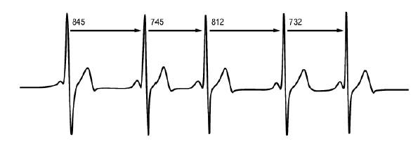 Вариабельность сердечного ритма: что это вообще такое и почему вам без него не обойтись