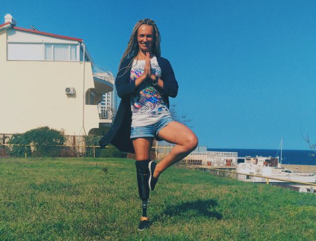 Интервью с Татьяной Воротилиной, девушкой-киборгом