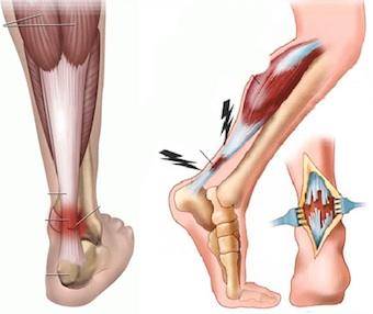 Гид по беговым травмам: тендинит ахиллова сухожилия