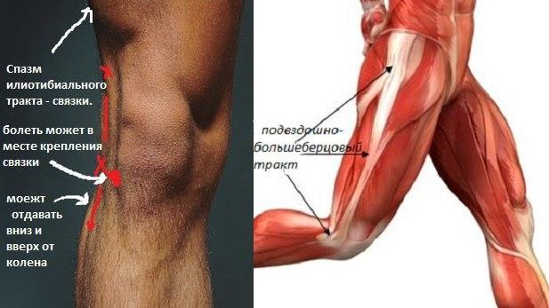 Гид по беговым травмам: синдром подвздошно-большеберцового тракта
