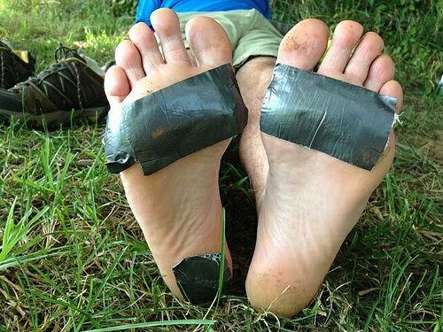 Проблемы со стопами у бегунов